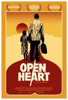 Открытое сердце